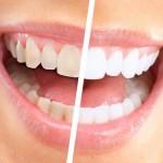 Otbelivajushhie poloski dlja zubov